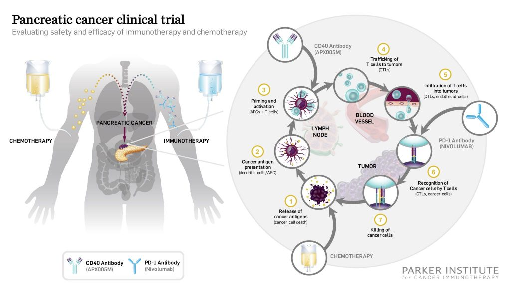 Pancreatic Cancer Clinical Trial with Immunotherapy and Chemotherapy