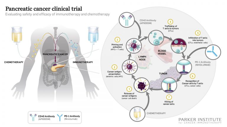 CD40 Pancreatic Cancer Trial Graphic Press Release