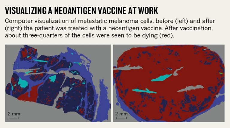 Neoantigen Vaccine At Work