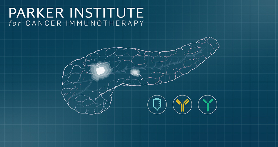 Parker Institute pancreatic cancer trial graphic